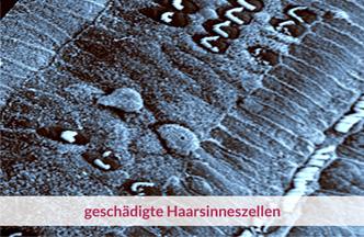 geschädigte Haarsinneszellen